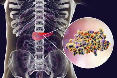 Îndulcitori artificiali și insulina